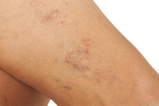 Image of spider veins.
