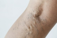 Image of varicose veins.