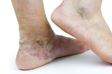 Image of venous insufficiency.